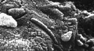 Τι είναι αυτά τα νανοβακτήρια;